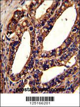 Anti-ORAI1 Rabbit Polyclonal Antibody