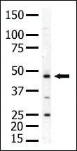 Anti-PIP4K2A Rabbit Polyclonal Antibody