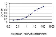 Anti-ABCC6 Mouse Monoclonal Antibody