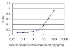Anti-ADCY5 Mouse Monoclonal Antibody
