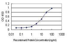 Anti-ALDH3B2 Mouse Monoclonal Antibody