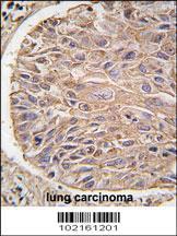 Anti-IKBKB Rabbit Polyclonal Antibody