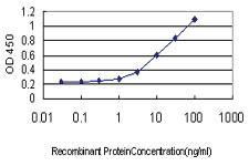 Anti-ALDOB Mouse Monoclonal Antibody