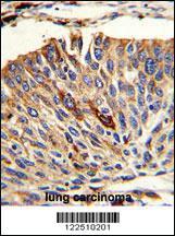 Anti-VTI1A Rabbit Polyclonal Antibody