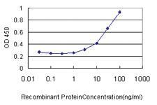 Anti-AP1S2 Mouse Monoclonal Antibody