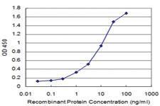 Anti-AP3B1 Mouse Monoclonal Antibody