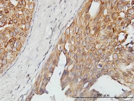 Anti-ASPSCR1 Mouse Monoclonal Antibody