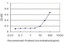 Anti-BARHL1 Mouse Monoclonal Antibody