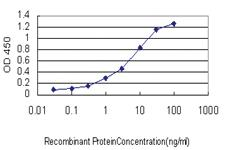Anti-BCL7B Mouse Monoclonal Antibody
