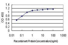 Anti-BCL9 Mouse Monoclonal Antibody