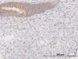 Anti-PIBF1 Mouse Monoclonal Antibody