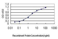 Anti-CENPQ Mouse Monoclonal Antibody
