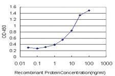 Anti-CACNA1S Mouse Monoclonal Antibody
