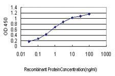 Anti-CDC42BPA Mouse Monoclonal Antibody