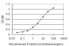 Anti-ACAP2 Mouse Monoclonal Antibody