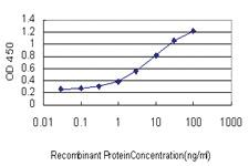 Anti-CILP Mouse Monoclonal Antibody