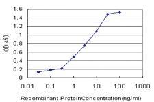 Anti-CRYGD Mouse Monoclonal Antibody