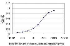 Anti-CTAG2 Mouse Monoclonal Antibody