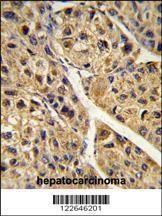 Anti-PEX11A Rabbit Polyclonal Antibody