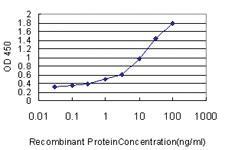 Anti-DDX20 Mouse Monoclonal Antibody