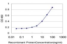 Anti-DPP4 Mouse Monoclonal Antibody