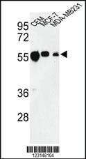 Anti-TBB1 Rabbit Polyclonal Antibody