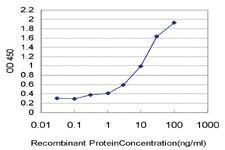 Anti-ELANE Mouse Monoclonal Antibody