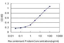 Anti-ENTPD5 Mouse Monoclonal Antibody