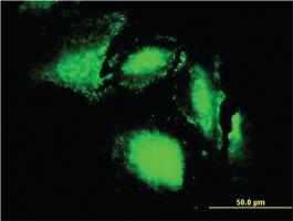 Anti-ERN1 Mouse Monoclonal Antibody