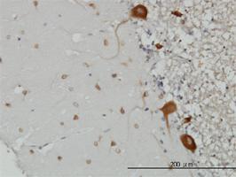 Anti-FARSB Mouse Monoclonal Antibody