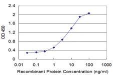 Anti-FCER2 Mouse Monoclonal Antibody