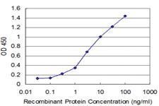 Anti-FGFR1OP2 Mouse Monoclonal Antibody