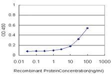 Anti-RNF145 Mouse Monoclonal Antibody