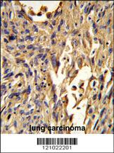 Anti-S100A10 Rabbit Polyclonal Antibody