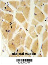 Anti-GCLM Rabbit Polyclonal Antibody