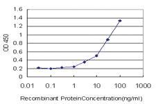 Anti-GRM2 Mouse Monoclonal Antibody