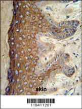 Anti-KRT1 Rabbit Polyclonal Antibody