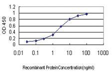 Anti-KCNE4 Mouse Monoclonal Antibody