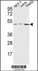 Anti-HAPLN1 Rabbit Polyclonal Antibody