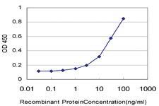 Anti-CERS4 Mouse Monoclonal Antibody