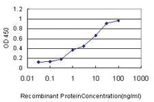 Anti-LSM3 Mouse Monoclonal Antibody