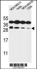 Anti-STX10 Rabbit Polyclonal Antibody