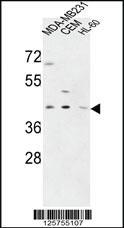 Anti-PR38A Rabbit Polyclonal Antibody