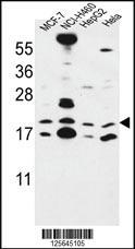 Anti-CNPY2 Rabbit Polyclonal Antibody [clone: 366CT28.2.3]