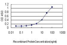 Anti-UNC5B Mouse Monoclonal Antibody