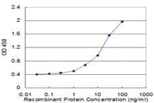 Anti-USP9Y Mouse Monoclonal Antibody