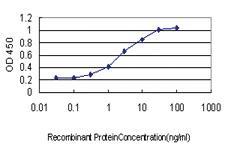 Anti-VPS72 Mouse Monoclonal Antibody