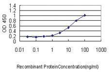 Anti-VSNL1 Mouse Monoclonal Antibody