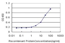 Anti-ZWILCH Mouse Monoclonal Antibody