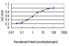 Anti-MARK2 Mouse Monoclonal Antibody